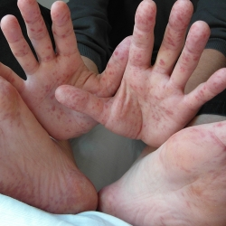 PENYAKIT TANGAN, KAKI DAN MULUT (HAND, FOOT AND MOUTH DISEASE)